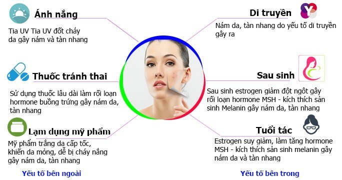 nguyên nhân gây nám da và cách điều trị nám da