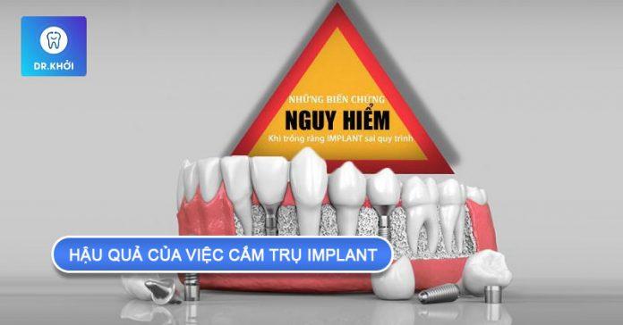 hậu quả của việc cắm trụ implant