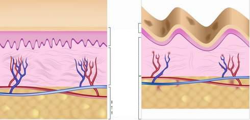 Các sợi collagen giúp cho da không bị chùng nhão.